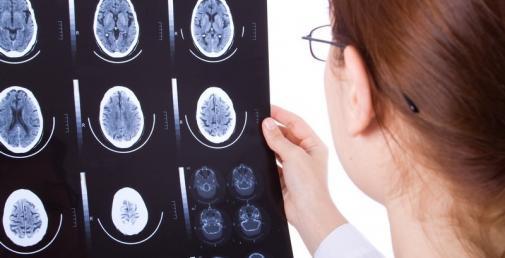Neurologické ochorenia - Kúpele Dudince