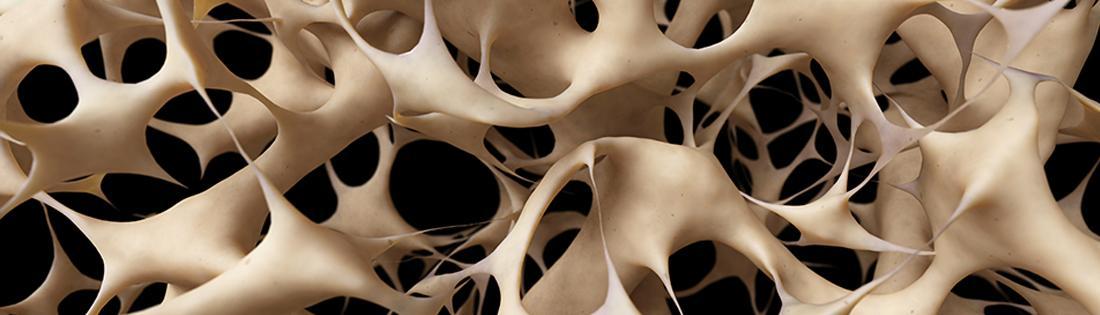 Osteoporóza - Kúpele Dudince
